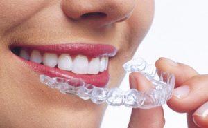 ortodoncia-invisaling