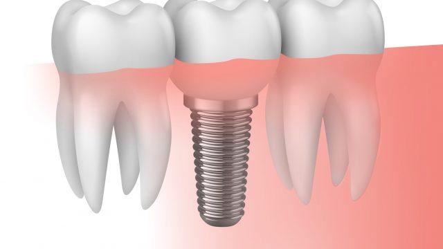 Los implantes hoy