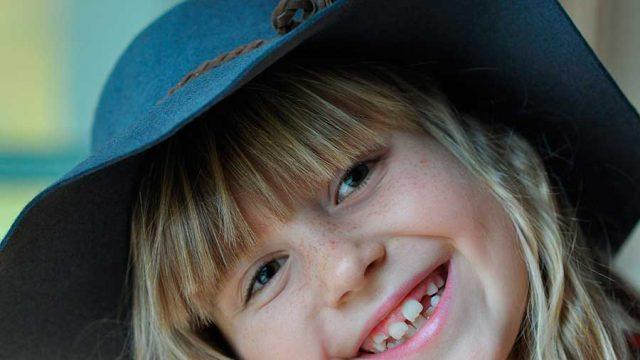 La hipomineralización incisivo-molar en los niños.
