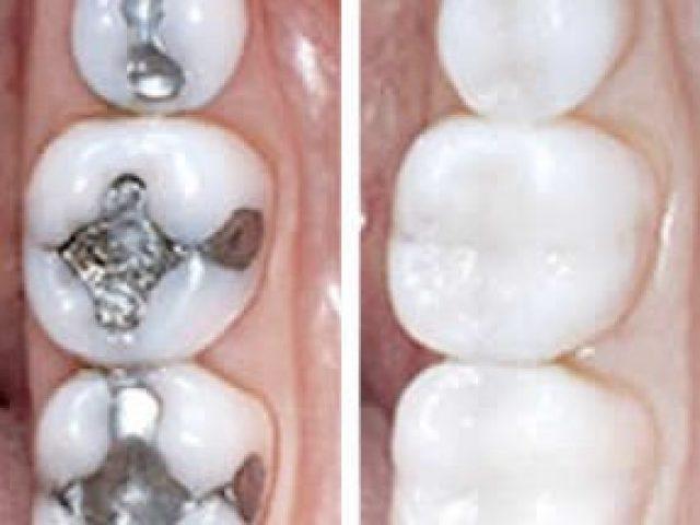 Empaste dental